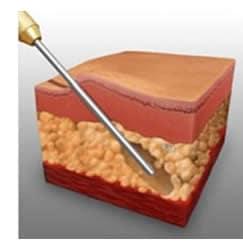 Lipoaspirazione liposuzione