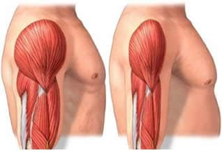 Miosite Muscoli