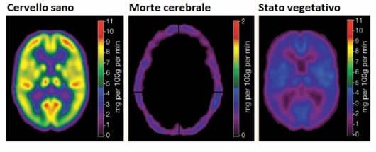 Morte cerebrale e stato vegetativo
