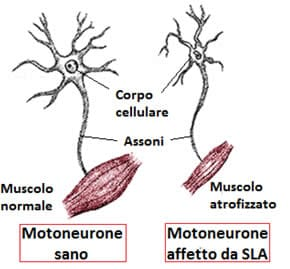 Sla sclerosi laterale amiotrofica for Disegni del portico laterale