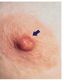 Esposizione di psoriasi su pelle principale