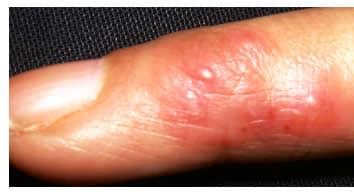 bolla rossa sul dito del piede