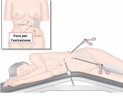 Splenectomia Laparoscopia