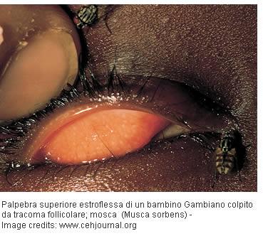 tracoma terapia
