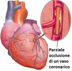 Coronaropatie trapianto di cuore