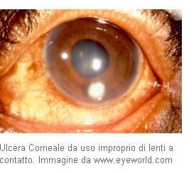 sintomi di uninfezione batterica agli occhi