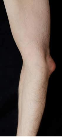 ciste infiammata braccio