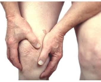 Condropatia Rotulea