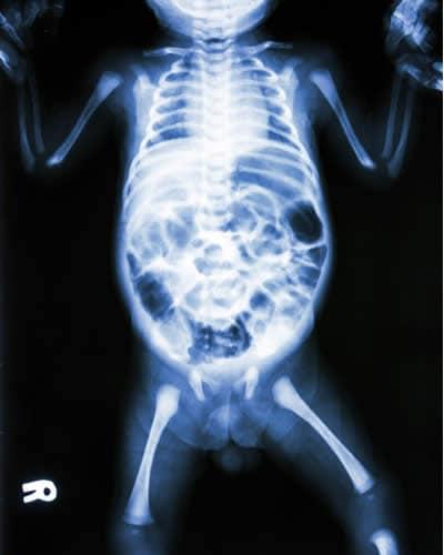 Distensione Addominale