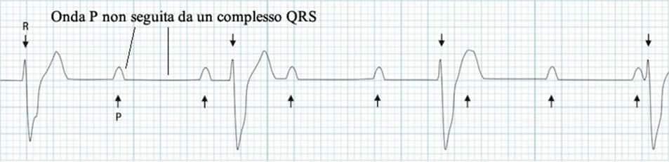 Elettrocardiogramma Blocco Atrioventricolare