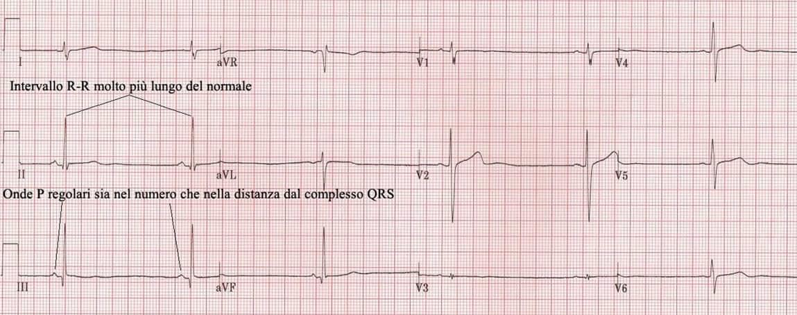 elettrocardiogramma bradicardia sinusale