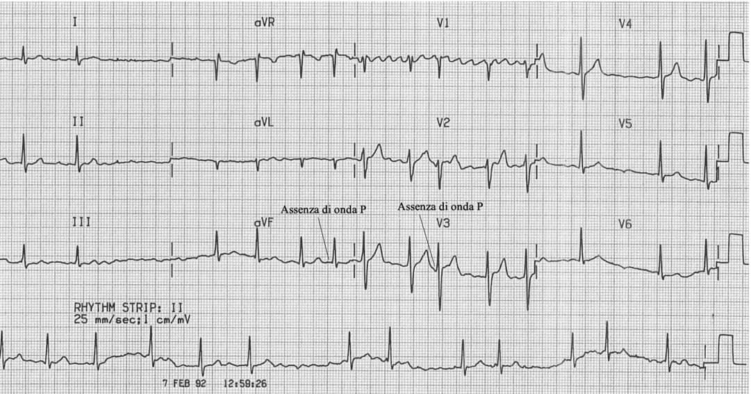 elettrocardiogramma fibrillazione atriale