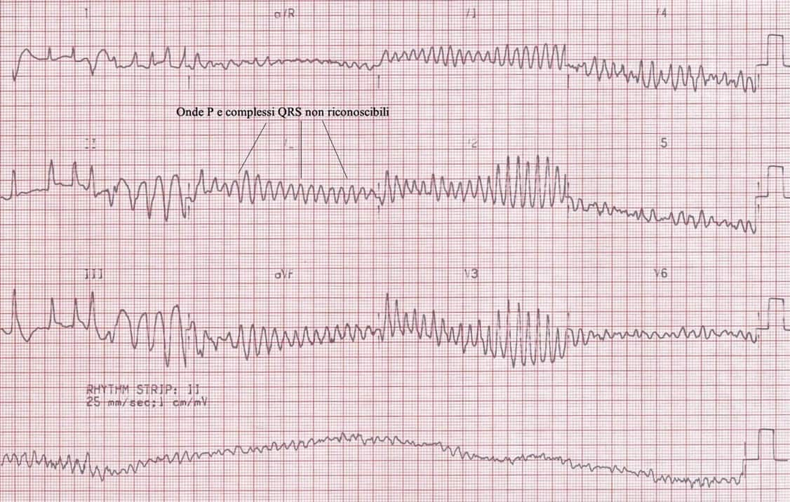 elettrocardiogramma fibrillazione ventricolare