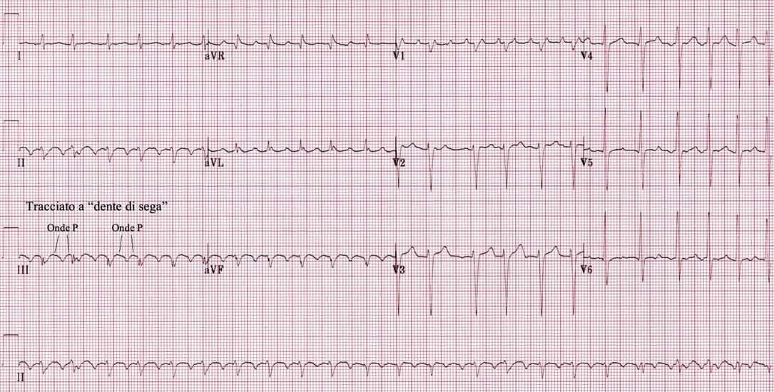 elettrocardiogramma flutter atriale