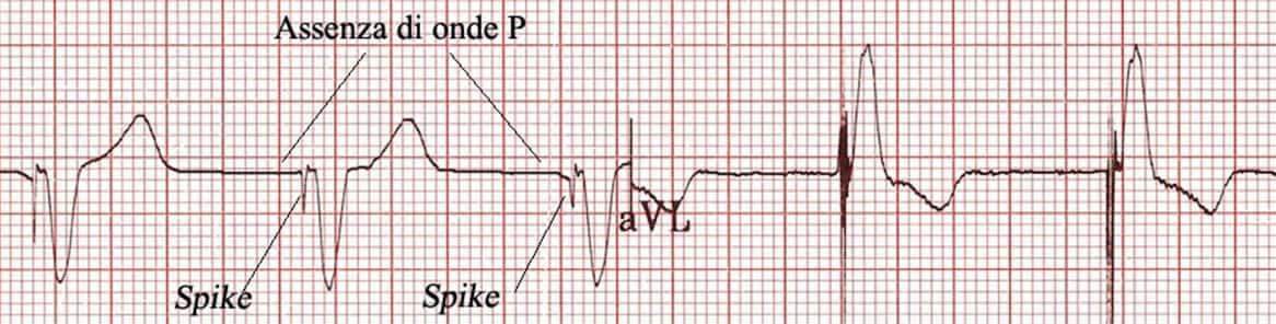 elettrocardiogramma pacemaker