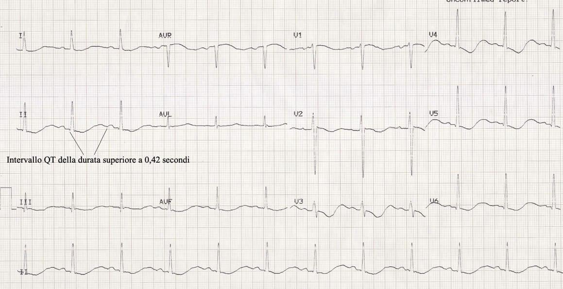 elettrocardiogramma sindrome del QT lungo