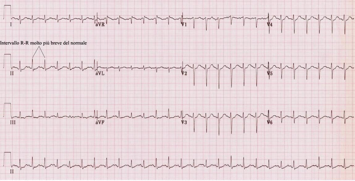 elettrocardiogramma tachicardia sinusale