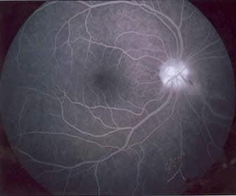 Retina Fluorangiografia