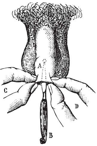 Frenuloplastica