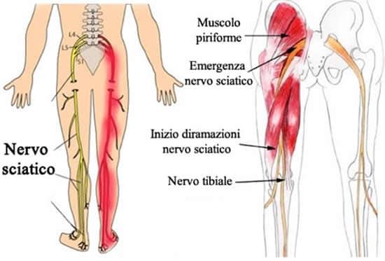 Lombosciatalgia for Interno coscia a corpo libero