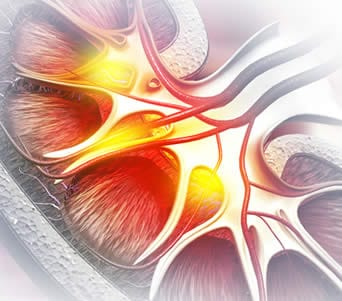 un parassita può causare sangue nelle urine