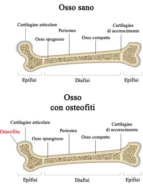 Osteofiti - Osteofitosi