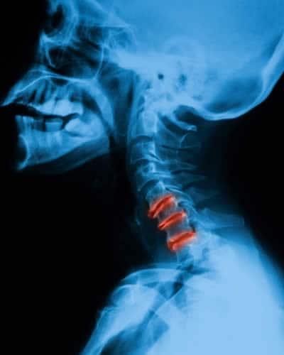 Dolore di trattamento di osteochondrosis sotto una pala