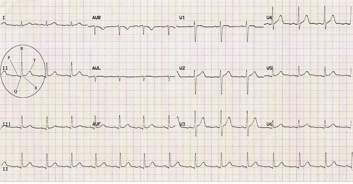 Elettrocardiogramma tracciato normale