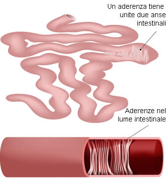 Aderenza Intestinale