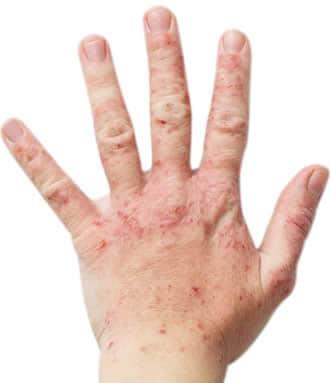 Medicine di cura di eczema
