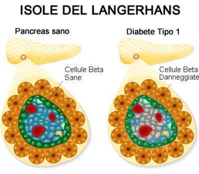 niveau de diabète