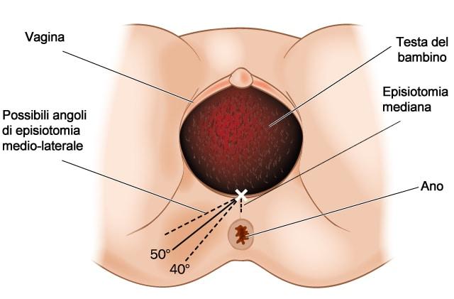 Candele da emorroidi proktozan forte