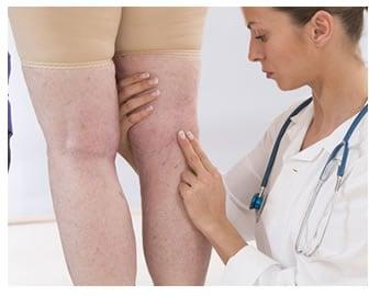 perdita liquidi da gambe