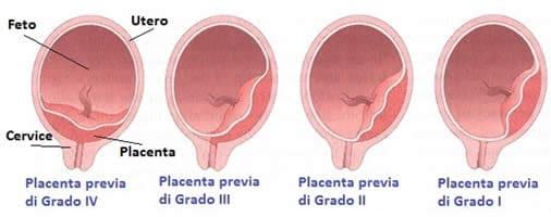 Placenta Previa - Gravità