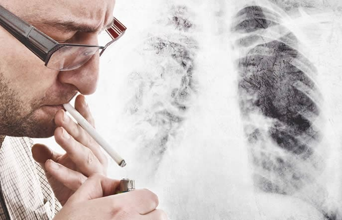 Polmoni Fumatore