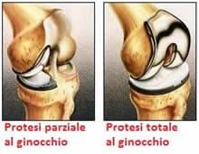 Protesi al ginocchio parziale