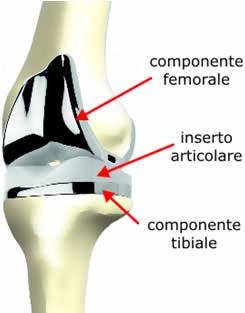 Protesi totale ginocchio