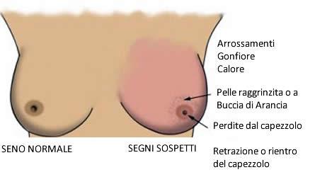 Tumore al Seno - Sintomi