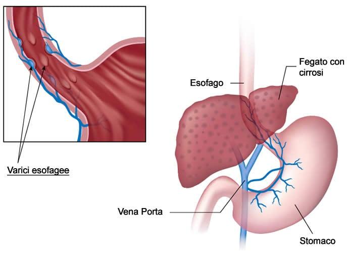 Trombosi arteriose delle estremità più basse