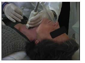 agoaspirato della tiroide