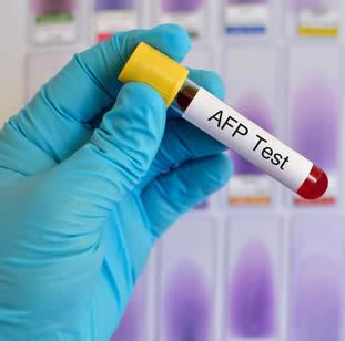 Alfafetoproteina in gravidanza