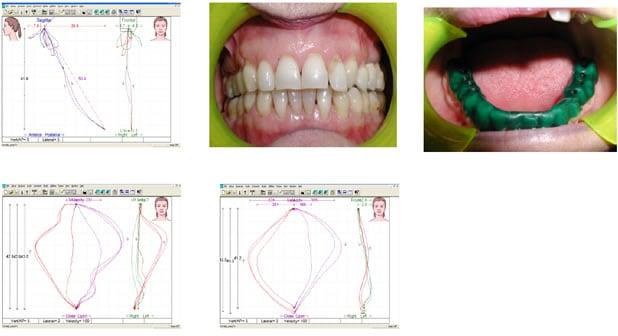 Click temporo-mandibolare: patogenesi e terapia