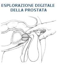 Esplorazione rettale digitale della prostata