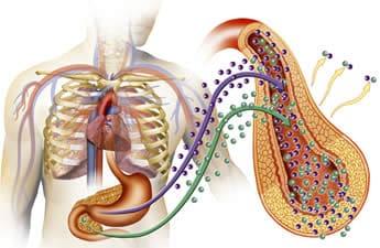 Iperinsulinemia