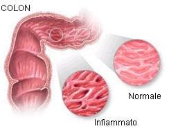 Malattie infiammatorie intestinali