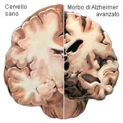 Cervello, Morbo di Alzheimer