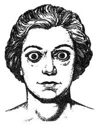 Sintomi Tiroide Ipertiroidismo