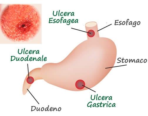 Ulcera peptica stomaco ulcera