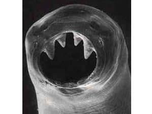 Vermi intestinali Ancylostoma duodenale
