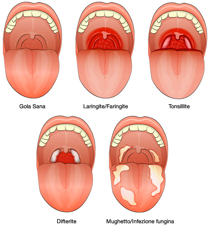 bocca-lingua